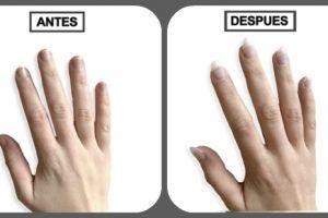 como hacer crecer las uñas rapido