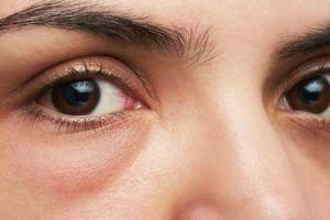 remedios caseros para las bolsas en los ojos