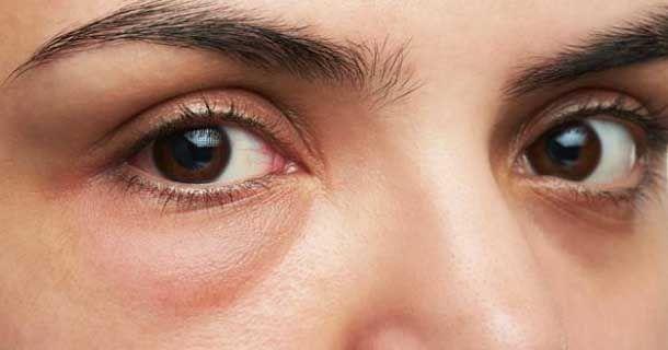 remedios caseros para eliminar las bolsas en los ojos