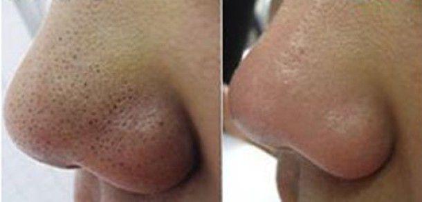 remedios para los puntos negros en la nariz