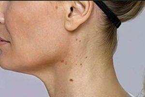 remedios caseros para las manchas en el cuello